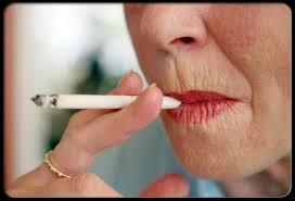 Rides autour de la bouche dûes au tabac